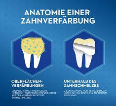 Anatomie einer Zahnverfärbung